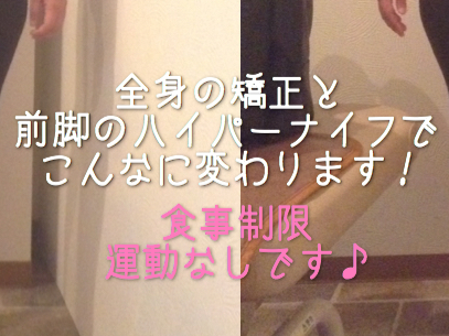 【BeforeAfter】全身美容矯正4回の後、全身矯正+ハイパーナイフ1部位2回で…